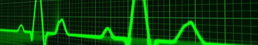 FI-pulse-trace-163708_640